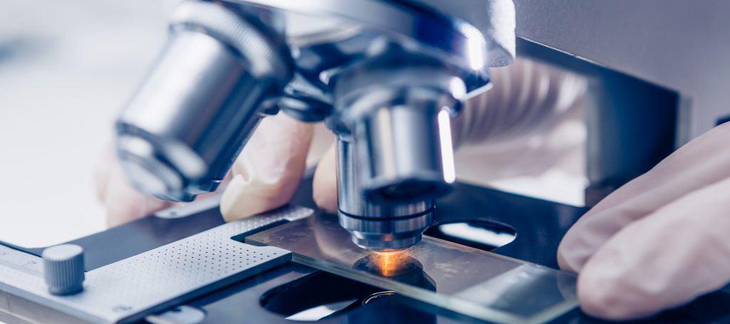 onderzoek fibromyalgie spierreuma